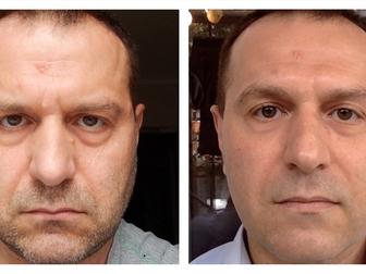 Свежее фотографию  Как убрать морщины и мешки под глазами? Инновационный микрокрем, эффект через 2-3 минуты! 36615526 в Новосибирске