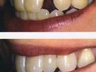 Увидеть фото  Вставить зуб за один день в Тюмени, Без хирургии и 39742642 в Москве