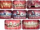 Уникальное изображение  Детский врач стоматолог-ортодонт 39752561 в Краснодаре