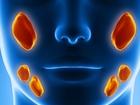 Смотреть фото Разное Рак слюнных желез, Лечение в Китае, 59876443 в Москве