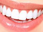 Просмотреть фотографию  Эстетическая реставрация зубов 70560921 в Москве