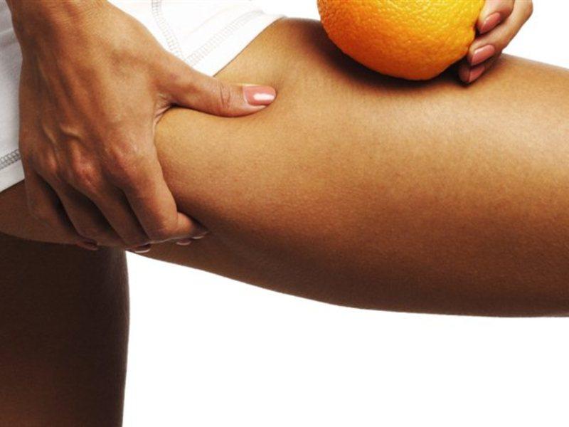 cellulitis massage blauwe plekken